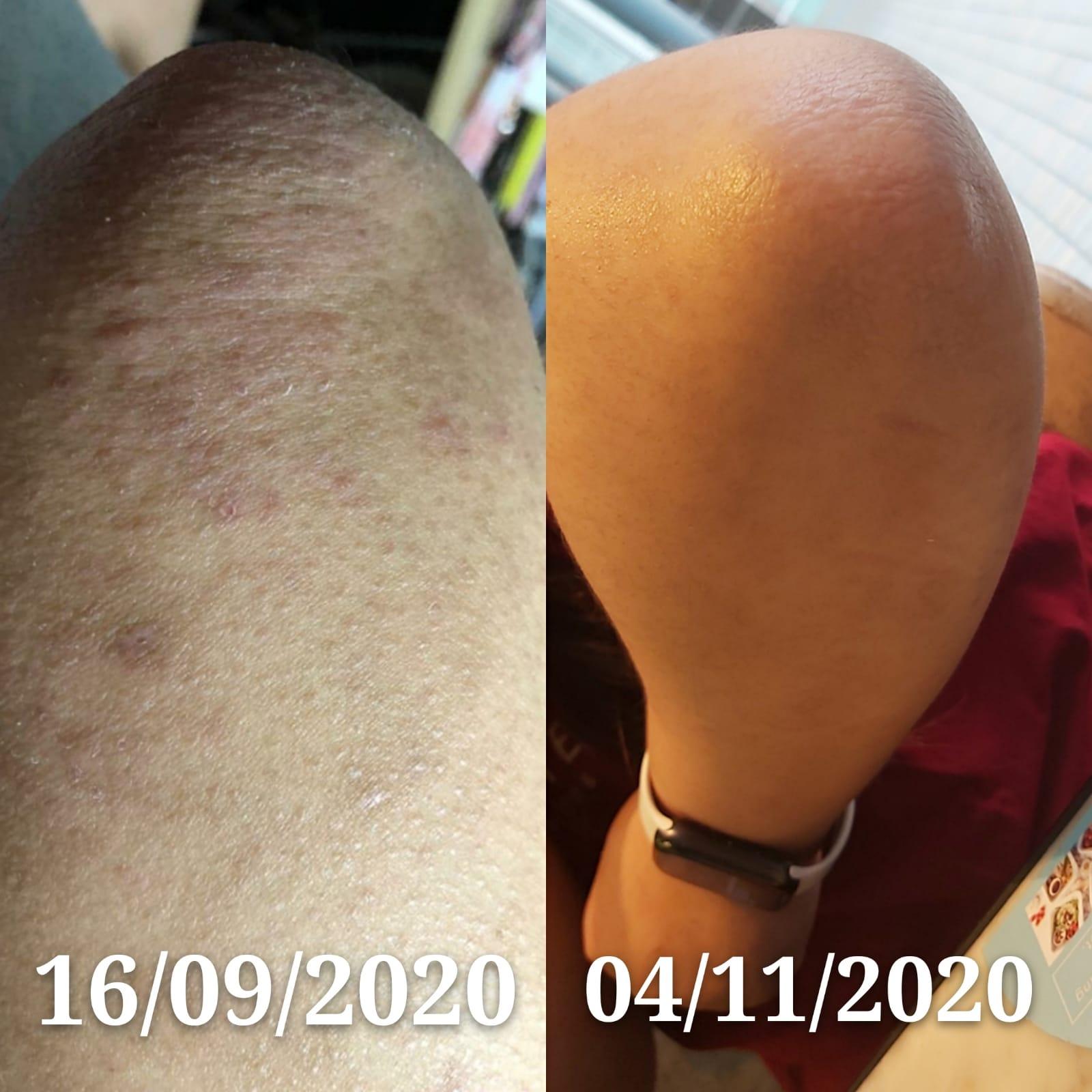 20年濕疹在使用1個多個後明顯改善