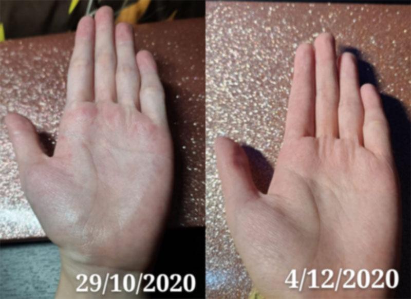 舒緩轉季手部發紅痕癢症狀